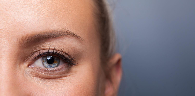 Bilde av øyne og pupiller - øvre øyelokksplastikk, tunge øyelokk