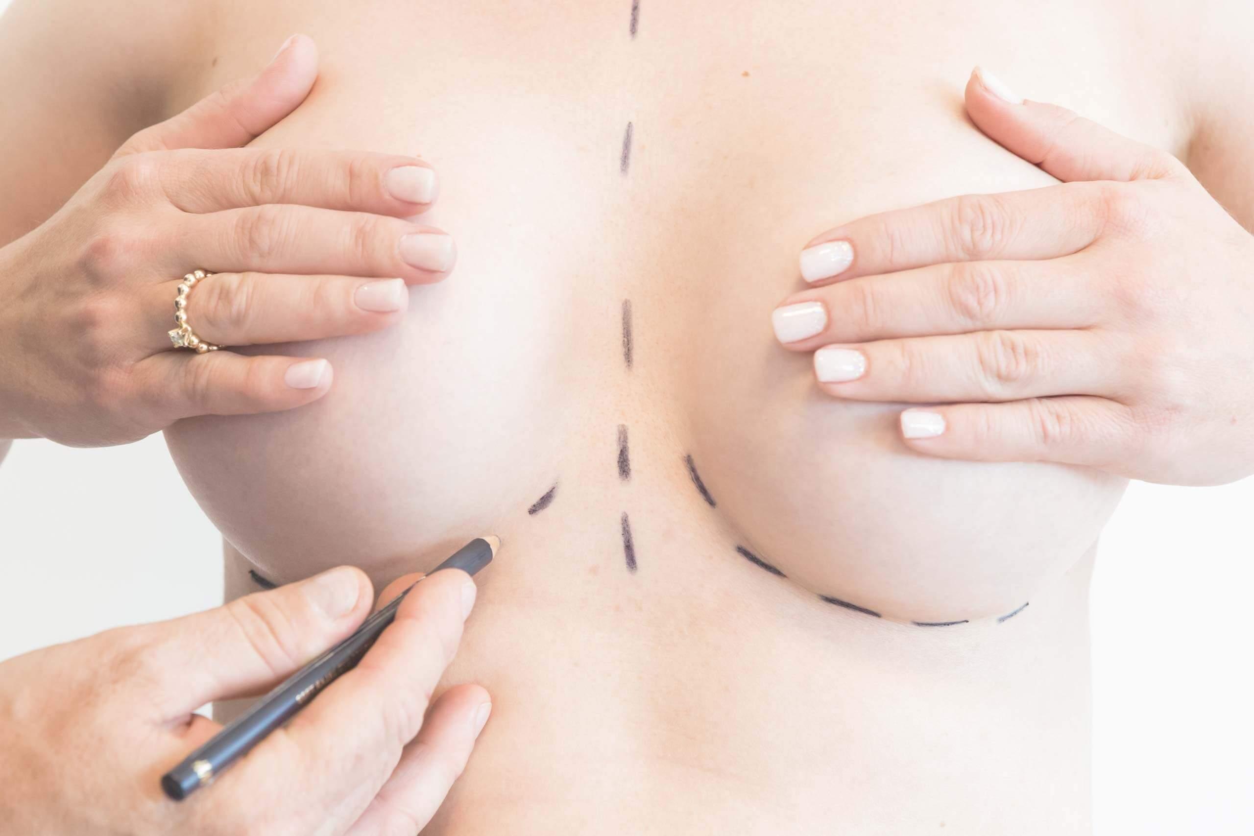 Silikonpupper brystforstørrelse fra Klinikk Haukeland