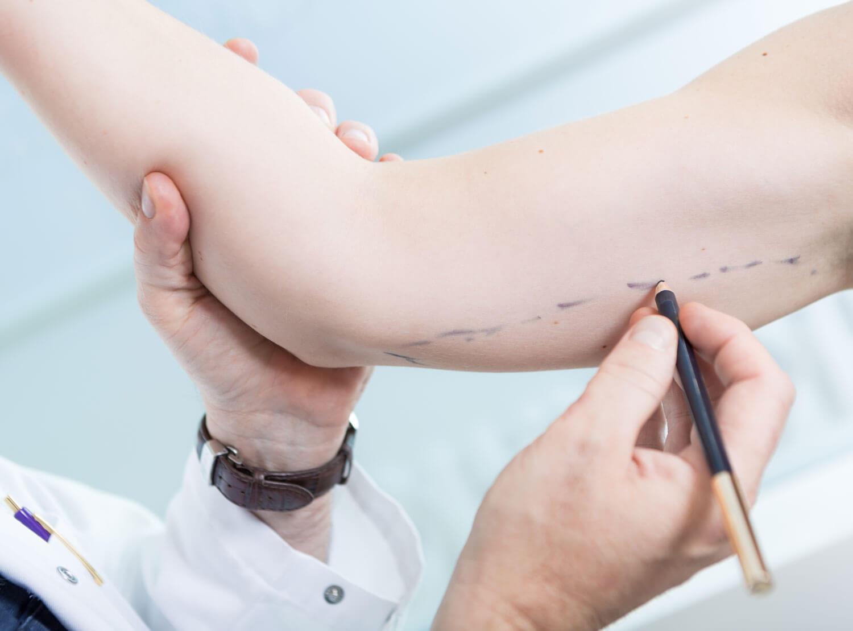 plastisk kirurgi, armplastikk ved klinikk haukeland