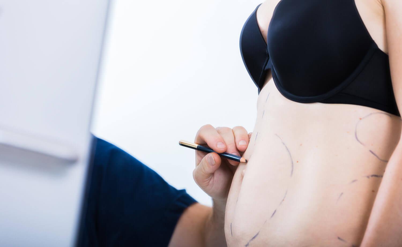 fettsuging av mage hos klinikk haukeland