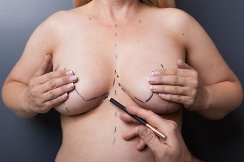Brystreduksjon-klinikkhaukeland