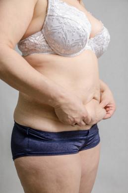 Fjerning av hud etter en slankeoperasjon