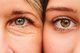 Øyebrynsløft